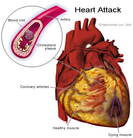 Vitamin Deficiency Linked to Stroke and Plaque Buildup in Carotid Arteries
